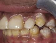 Osteogenesis imperfecta: een multidisciplinaire aangelegenheid in diagnostiek en behandeling
