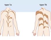 Erfelijke huidaandoeningen in de dagelijkse kindergeneeskundige praktijk