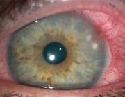 Rode ogen, traanogen en 'plakogen'