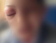 Een jongen met een dik rood oog