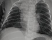 Virale diagnostiek voor acute luchtweginfecties bij kinderen
