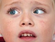 Verworven parese van de nervus abducens: spoedindicatie voor beeldvormend onderzoek?