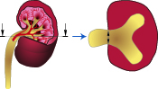 Een antenataal vastgestelde hydronefrose