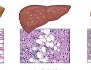 Screenen op niet-alcoholische leververvetting (NAFLD) bij obesitas en overgewicht: een stapsgewijze benadering