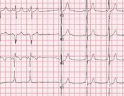 Een 9-jarige jongen met hartkloppingen