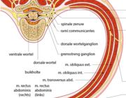 Anterior curaneous nerve entrapment syndrome (ACNES) als oorzaak van chronische buikpijn bij kinderen