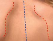 Een afwijking aan de schouder